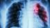 Tuberculose e HIV formam o 'casal do mal', alerta médica do Cemetron
