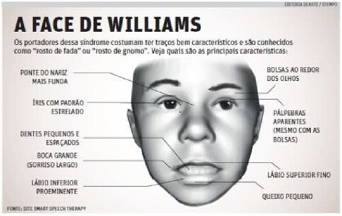 Conhece a Síndrome de Williams?