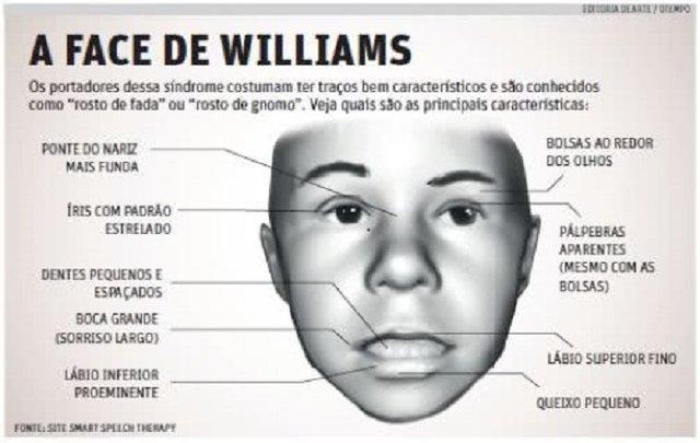 Conhece a Síndrome de Williams? - Gente de Opinião
