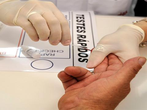 Unidades de saúde realizam VDRL durante a suspensão dos testes rápidos
